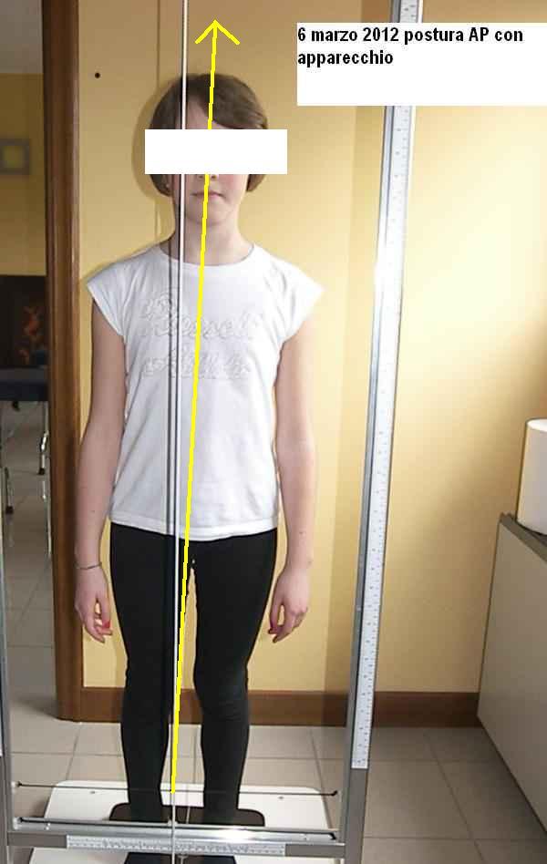 Postura AP con apparecchio